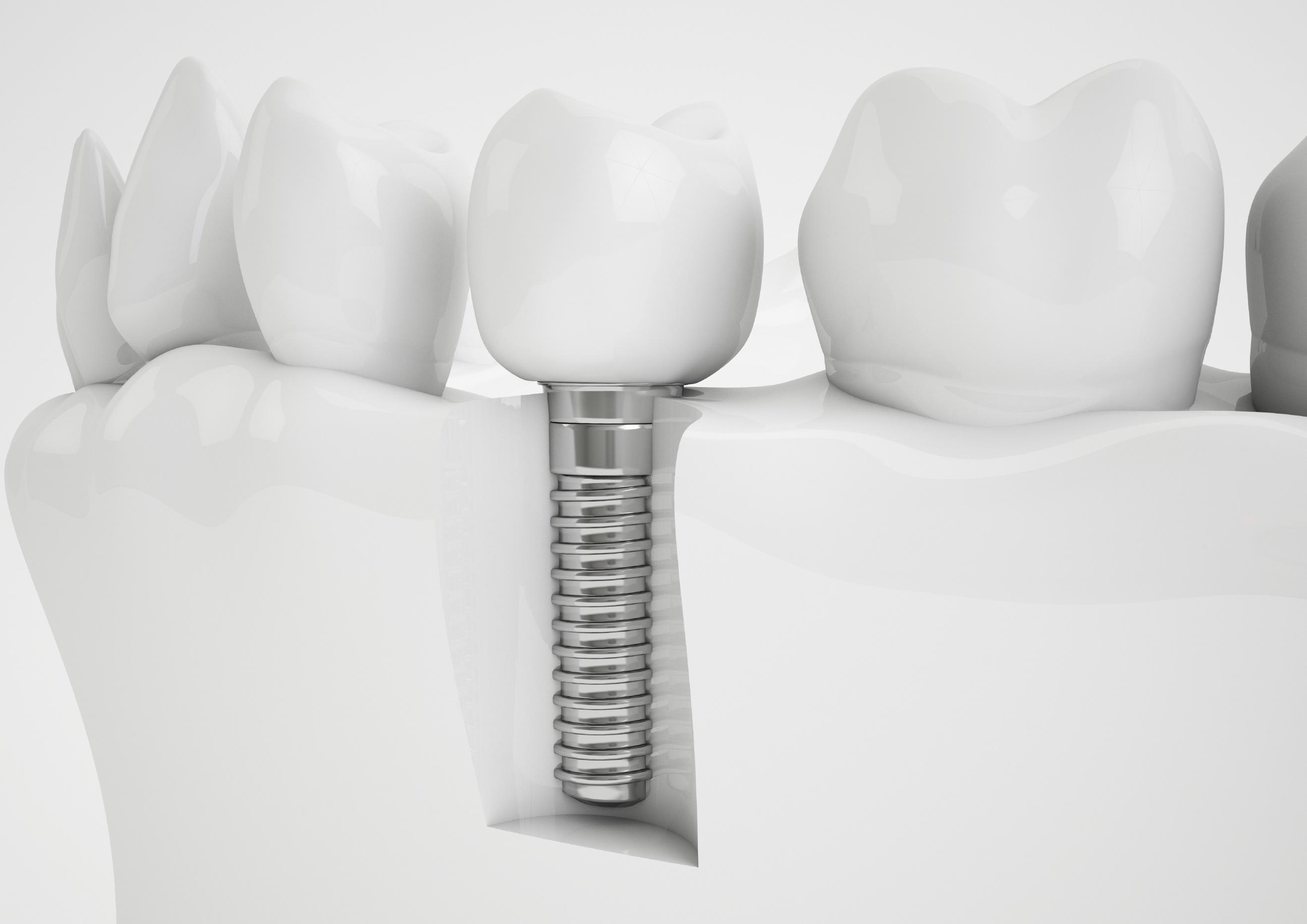 ascent-family-dental-implants