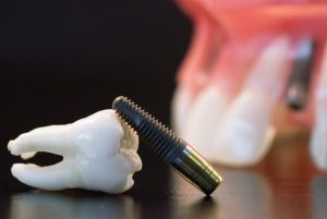 Những Lưu Ý Về Implant – Nha Khoa Sài Gòn B.sĩ Lâm