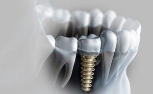 Thời Gian Implant Hồi Phục Mất Bao Lâu – Nha Khoa B.sĩ Lâm