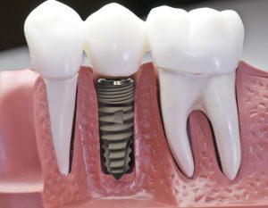 Trồng Implant Có Tốt Không