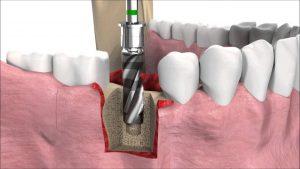 Tư Vấn Trồng Implant – Nha Khoa Sài Gòn Bác Sĩ Lâm